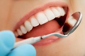 5-metode-de-albirea-dintilor-