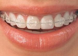 aparat-dentar-stomatologic